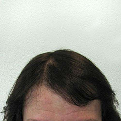 Transplantation de cheveux chez une femme selon la méthode du HST