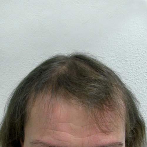 Greffe de cheveux chez la femme pour la méthode HST