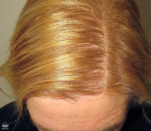 Perte de cheveux chez les femmes après une greffe de cheveux
