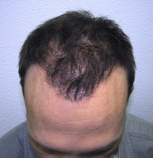 Délié après la transplantation de cheveux