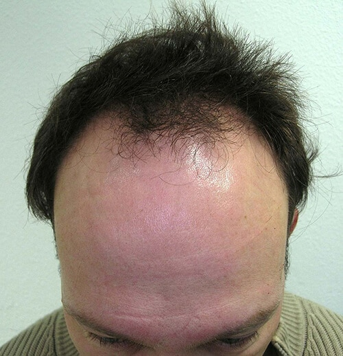 Delie pour la transplantation de cheveux