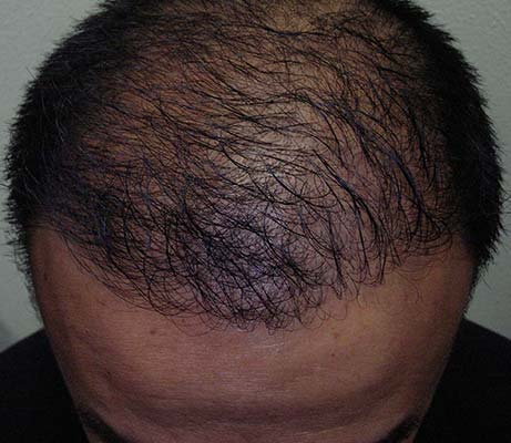 Greffe de cheveux chez l'homme après traitement