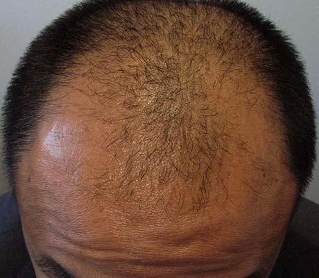 délie pour homme greffé de cheveux