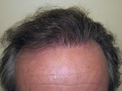 Greffe de cheveux homme après le traitement du patient