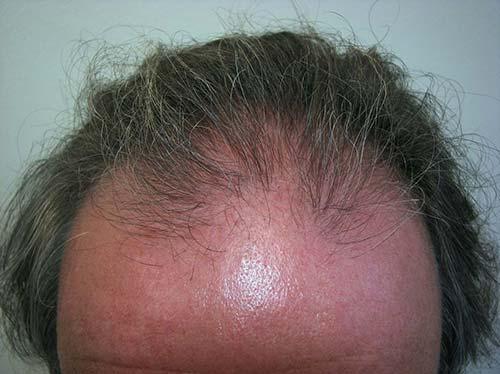 Résultats liés à la transplantation de cheveux liés au patient