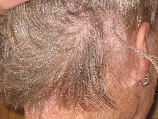 Regina-hees-after-hair-transplant