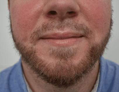 Résultat la barbe de l'homme