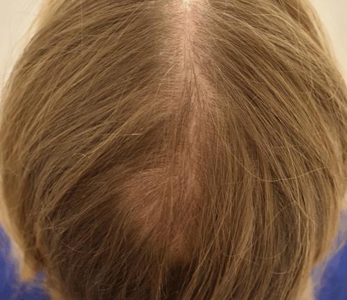 Cicatrice après greffe de cheveux