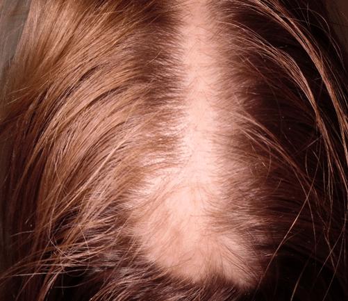 cicatrice pour greffe de cheveux